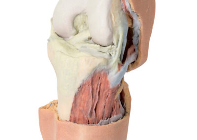 FLEXED KNEE JOINT DEEP DISSECTION