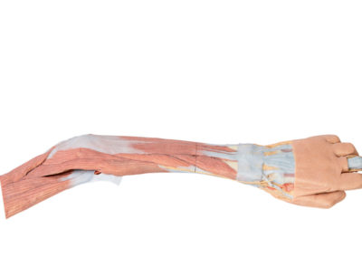 UPPER LIMB - ELBOW, FOREARM AND HAND